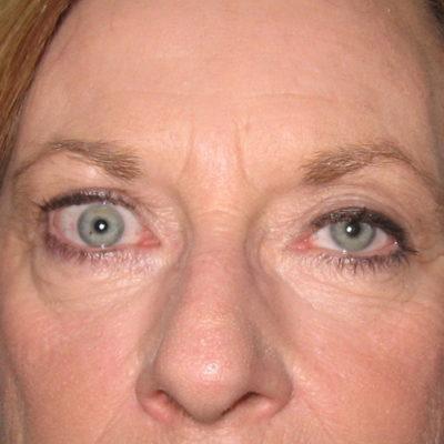Thyroid Eye Disease Gallery Opsga